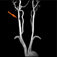 右内頸動脈50%狭窄