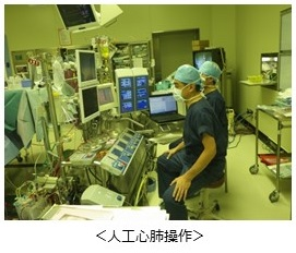 人工心肺操作