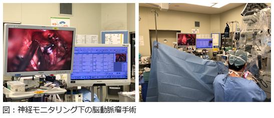 神経モニタリング下の脳動脈瘤手術