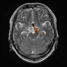 頭部MRI脳動脈瘤