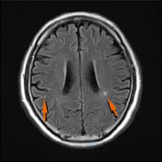 頭部MRI無症候性脳梗塞